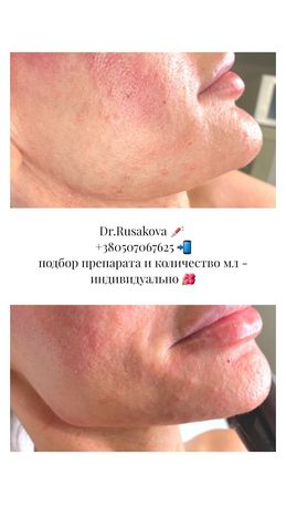 Врач-косметолог, увеличение губ, ботокс