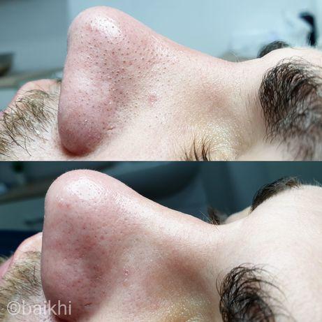 Чистка лица,пилинги,биоревитализация, ботокс