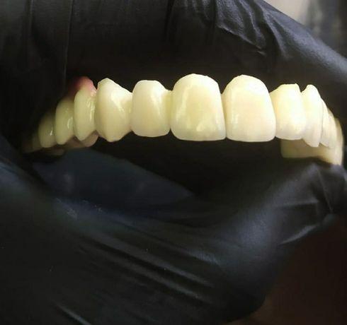 Зубний технік пропонує співпрацю лікарям Стоматологам.
