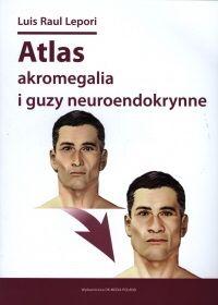 "Luis Raul Lepori ""Atlas akromegalia i guzy neuroendokrynne"""