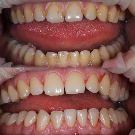 Профессиональная ультразвуковая чистка зубов 300грн/ с эир-флоу 800грн