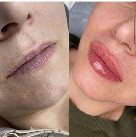 Увеличение губ, дипломированный косметолог, Киев