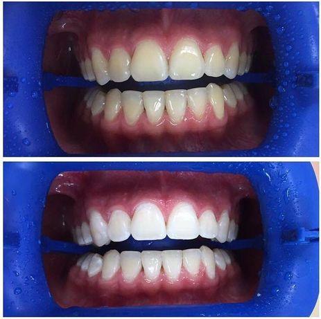Професиональная чистка зубов !!!Отбеливания зубов Magic Smile!!!