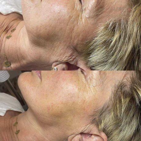 Zabiegi pielęgnacyjne ,odmladzajace ,wolumetria, lipoliza mezoterapia