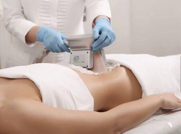 КРИОЛИПОЛИЗ избавление от жировых отложений без хирургии