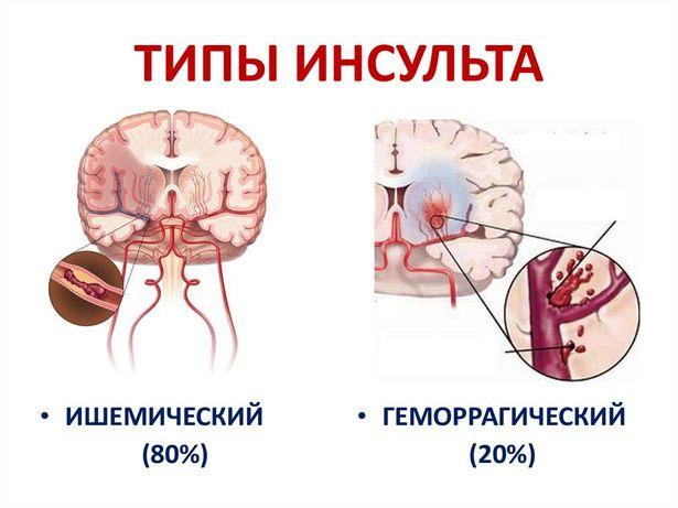 Реабилитация инсульт, все виды паралича, ДЦП, ЛФК, Стаж 20 лет
