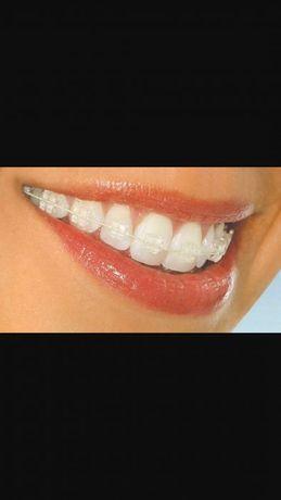 Врач стоматолог-ортодонт.Брекеты.Стоматология.