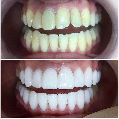Стоматология, лечение зубов