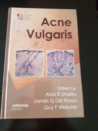 """Livro """"Acne Vulgaris"""""""
