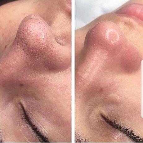 Твой Косметолог/ботокс/чистка лица/лечение акне