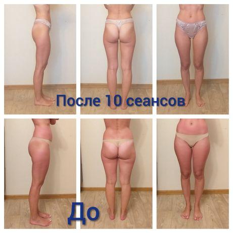 Антицеллюлитный массаж, кавитация, RF,обертывания Киев Троещина