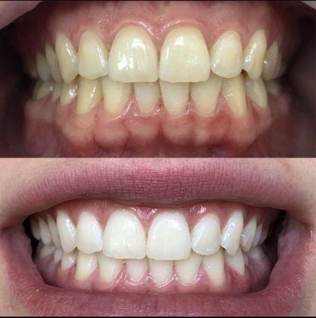 Акция !! 3-х Этапная Чистка Зубов -299 грн . СТОМАТОЛОГ