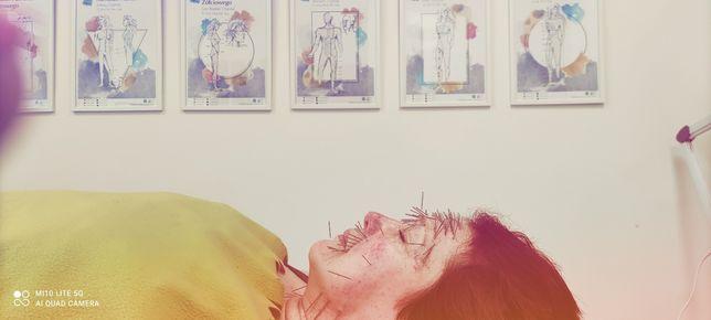 Akupunktura klasyczna i kosmetyczna, Elektroakupunktura, Masaż gua sha