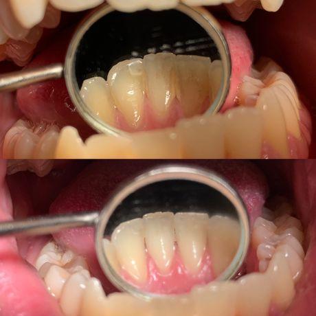 Лечение зубов, кариеса, парадонтитов, стоматолог