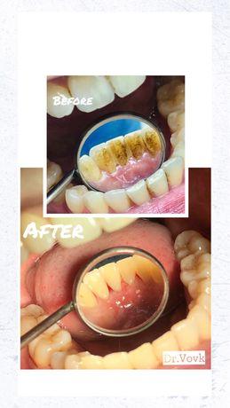 Чистка 600грн. Гігієна порожнини рота / Чистка зубов