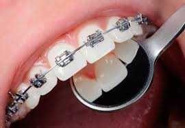 Брекеты Ортодонтия Исправление Прикуса Выравнивание Зубов Ортодонт