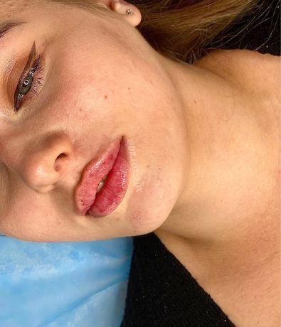Увеличение губ бантиком
