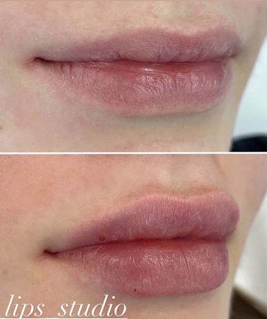 Контурная пластика губ ( увеличение губ, исправление астмертрии)