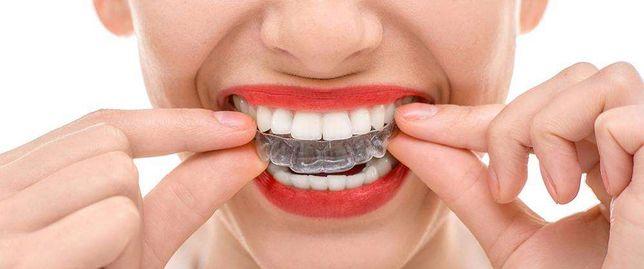 Элайнеры - стоматология на Глинки