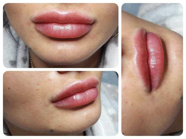 Powiększanie ust kwasem hialuronowym 400zł