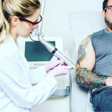 Удаление татуировки лазером.Коррекция тату